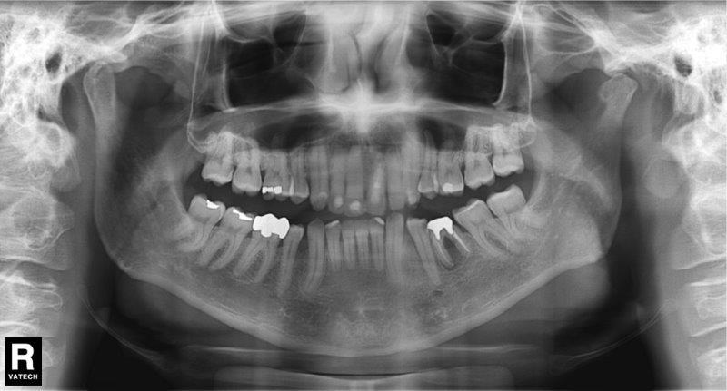preço radiografia panorâmica