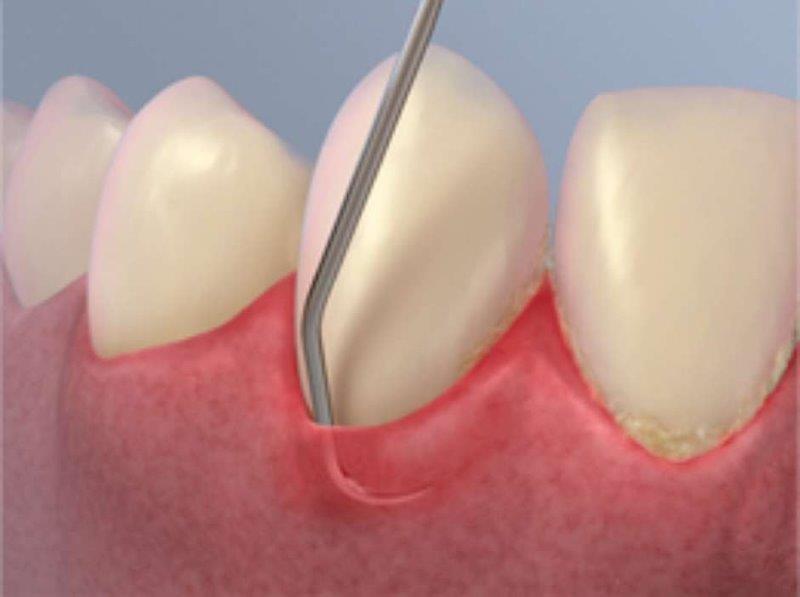 raspagem no dente