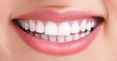 raspagem periodontal