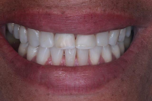 restauração de dente com resina