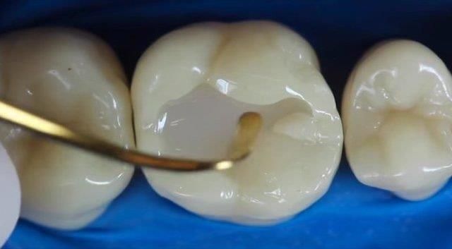 restauração dentaria