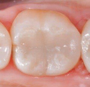 restauração dentaria com resina
