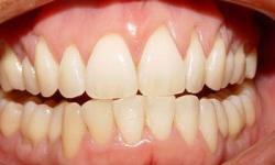 Dentista especialista em periodontia