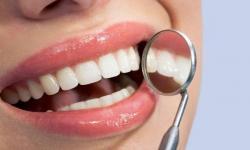 Quanto custa restauração de dente