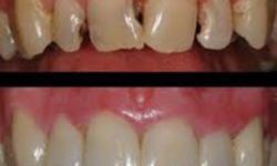 Quanto custa uma restauração de dente