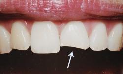 Valor restauração dente