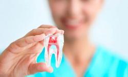 extração dentaria preço