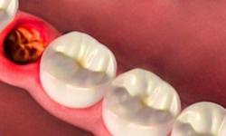 extração dente siso recuperação