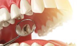 quanto custa a restauração de um dente