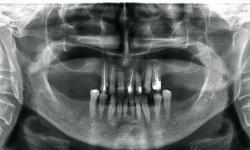 radiografia odontológica panorâmica