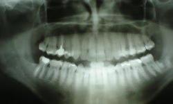 radiografia panorâmica preço