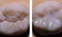 Selante odontológico