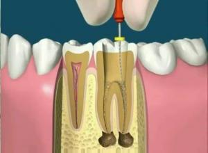 dentista endodontia