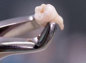 extração de dente valor