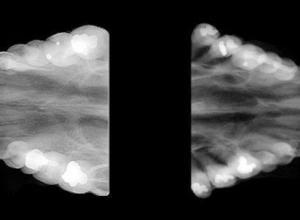 radiografia panorâmica dental preço
