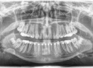 radiografia panorâmica valor