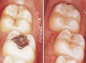 restauração de dente quanto custa