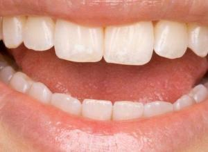 dentista especialista em restauração