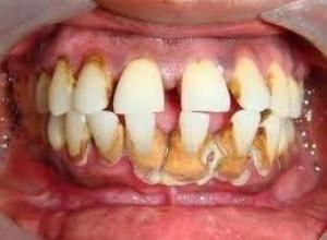 dentista periodontia