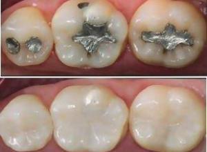 dentista restauração