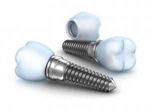 especialista em extração de dente