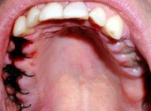 extração de dente inflamado