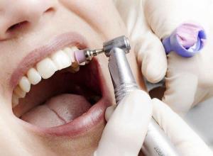 extração de dente preço
