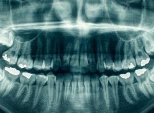 onde tirar radiografia panorâmica