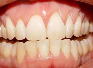 periodontia tratamento