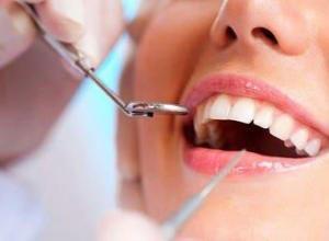 preço de extração de dente