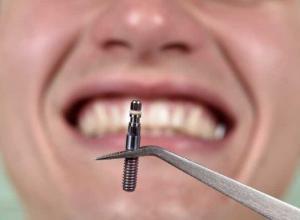 quanto custa em média uma restauração dentária
