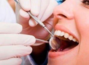 quanto custa extração de dente