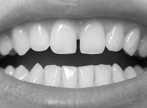 quanto custa uma restauração de dente com resina