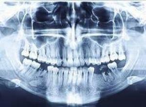 radiografia dentaria