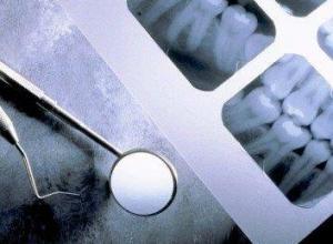 radiografia odontológica