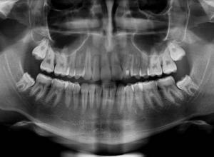 radiografia panorâmica digital