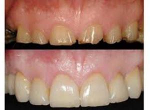 restauração dental