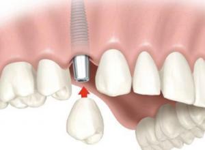 restauração odontológica