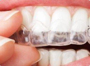 Selante dental preço