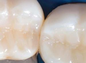 selante dentário