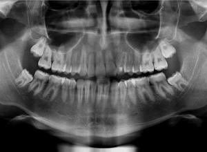 valor da radiografia panorâmica