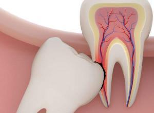 valor de extração de dente