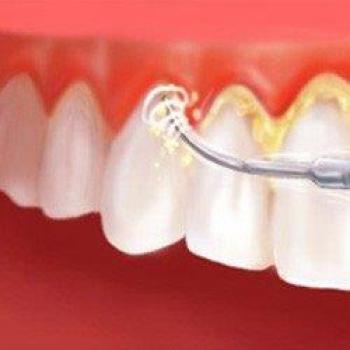 periodontia tem cura