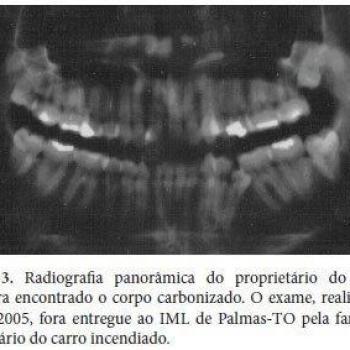 radiografia panorâmica com laudo