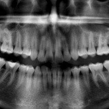 radiografia panorâmica das arcadas dentárias