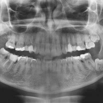 radiografia panorâmica dental