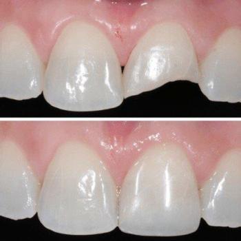 restauração com resina nos dentes da frente