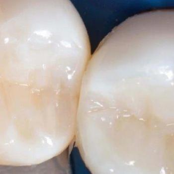 selante no dente