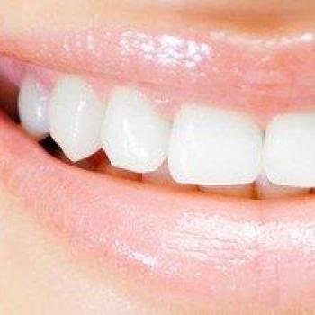 selante nos dentes quanto custa