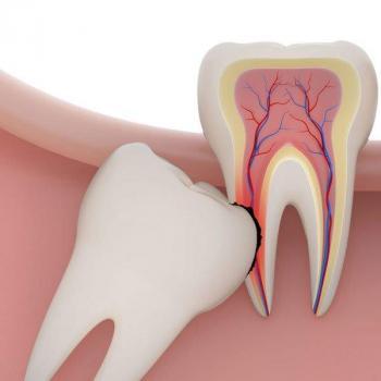 valor de uma extração de dente